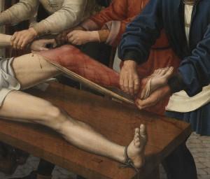 [도판 8] 도판 2의 세부, 껍질이 벗겨지는 시삼네스의 다리.